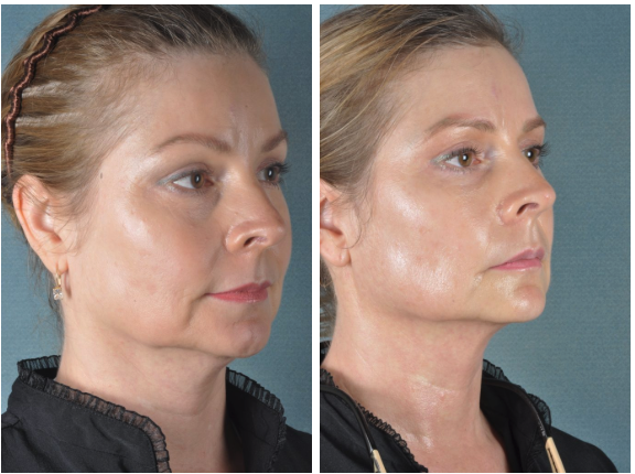 Ultherapy Before & After Fort Myers FL
